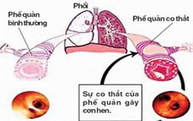 bệnh hen phế quản theo tây y