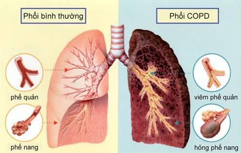 Viêm phế quản (VPQ) là bệnh thường gặp ở trẻ em
