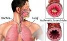 Triệu chứng bệnh hen phế quản và phòng tránh các tác nhân gây hen cấp tính