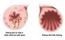 Salbutamol, hen phế quản và hệ luỵ