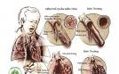 Bài thuốc chữa COPD – Phổi tắc nghẽn mạn tính