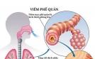 Bệnh viêm phế quản P.1: Những triệu chứng cấp tính và mạn tính