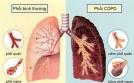 Cảnh báo bệnh phổi tắc nghẽn mạn tính dễ chết hơn ung thư