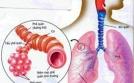 Hen phế quản biến chứng thành phổi tắc nghẽn mạn tính?