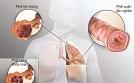 Bệnh phổi tắc nghẽn dễ nhầm với hen suyễn