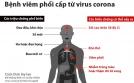 Bệnh nhân hen phế quản, viêm phế quản mạn, COPD và nguy cơ nhiễm virus Corona