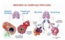 Cách chữa bệnh phổi tắc nghẽn mạn tính