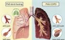 Bệnh phổi tắc nghẽn mạn tính có chữa được không