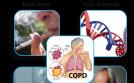 Sát thủ vô hình COPD và giải pháp kiểm soát tuyệt vời