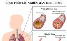 PHỤC HỒI CHỨC NĂNG HÔ HẤP CHO BỆNH NHÂN COPD (Kỳ 1)