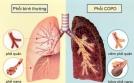 Sự nguy hiểm của bệnh phổi tắc nghẽn mạn tính