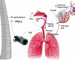 Ô nhiễm không khí vượt ngưỡng, cần làm gì để bảo vệ sức khỏe hô hấp?