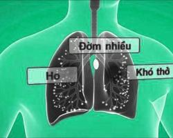 Ho, đờm, khò khè, khó thở: Nguyên nhân, chẩn đoán và điều trị