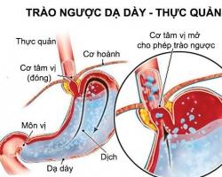 Hen phế quản và trào ngược dạ dày thực quản, những điều cần biết
