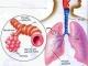 """Bài thuốc cổ phương 1.500 """"Tiểu thanh Long thang"""" gia giảm ngăn ngừa tái phát cơn hen nhờ tăng cường miễn dịch hệ hô hấp như thế nào?"""